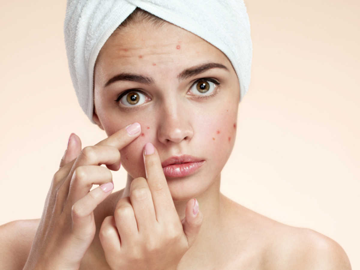Fashion and beauty tips for the girls and how to handle acne in young girl